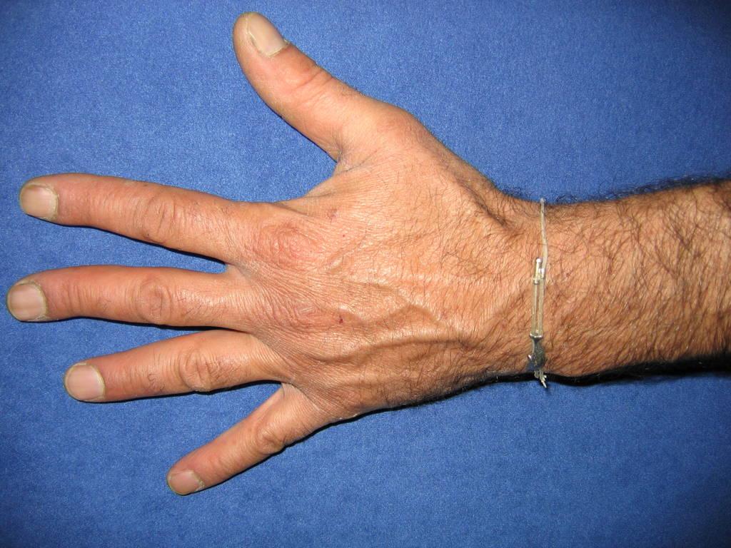 Il trattamento di pigmentary nota su rimedi di gente di mani